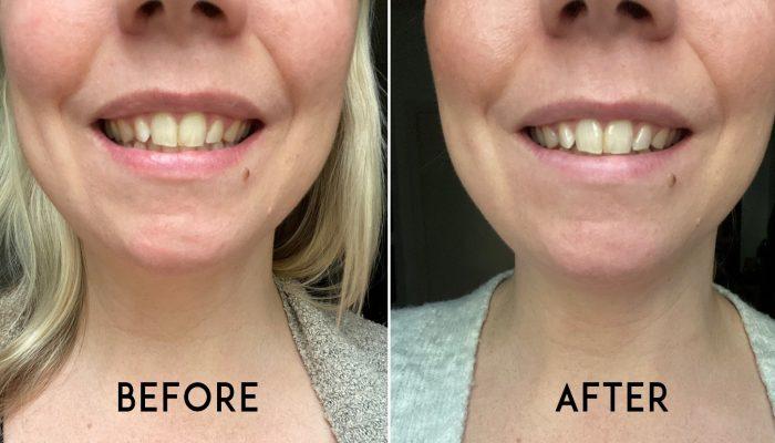 Teeth Whitening At Home The Bespoke Black Book